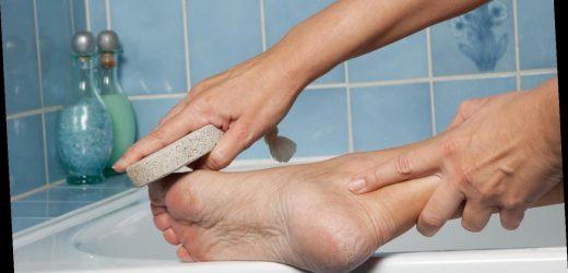 Hornhaut entfernen: So werden Ihre Füße (wieder) weich und geschmeidig