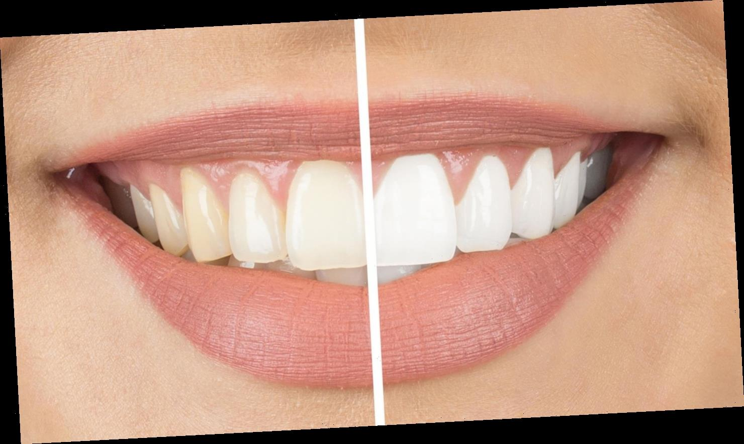 Bleaching-Methoden im Vergleich: So hellen Sie Ihre Zähne wieder auf